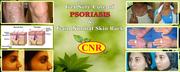 psoriasis treatment  chennai ,  cnrherbs,  drcnrajadurai,  cnr herbs revi