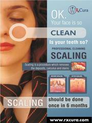 Dental Scaling and Polishing in Bangalore