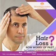 Best Hair Transplant Clinic in Bangalore - Skinology Centre