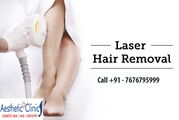 Laser Hair Removal - Laser Tattoo Removal – Aestheticplusclinic.In